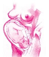 prawidłowa pozycja dziecka w macicy